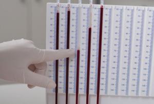 Общий клинический анализ крови: норма и патология